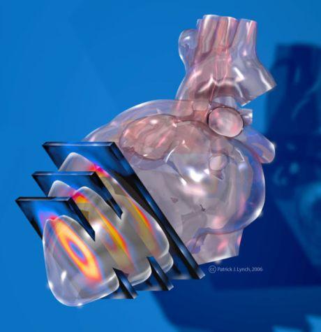 579px-heart_spect_imaging.jpg