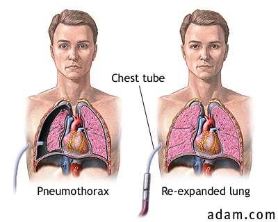 http://tomography.files.wordpress.com/2007/10/pneumothorax_3.jpg