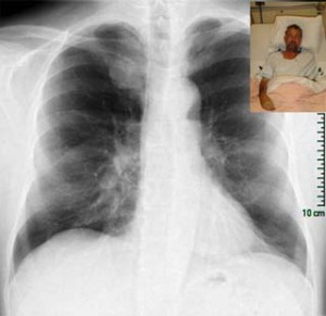 xray-and-patient-photo